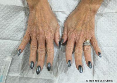 03-skin-clinic-leeds-radiesse-hands-before