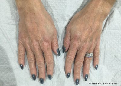 04-skin-clinic-leeds-radiesse-hands-after