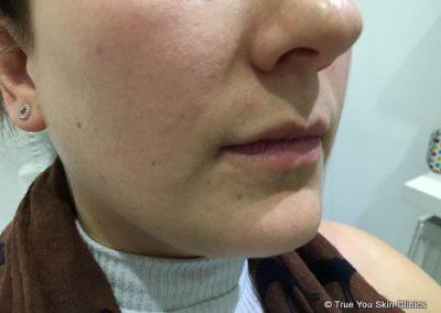 07-skin-clinic-leeds-lip-filler-8