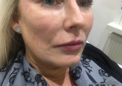 11-skin-clinic-leeds-lip-filler-7