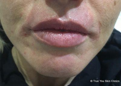 12-skin-clinic-leeds-lip-filler-6