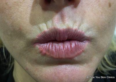 13-skin-clinic-leeds-lip-filler-5