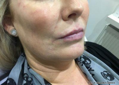 14-skin-clinic-leeds-lip-filler-4