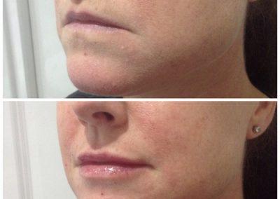 15-skin-clinic-leeds-lip-filler-3
