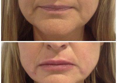 16-skin-clinic-leeds-lip-filler-2