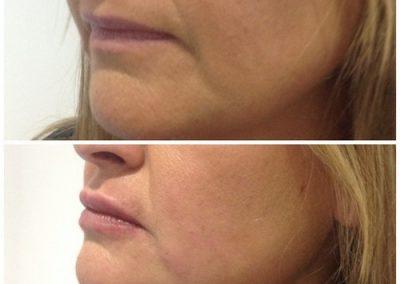 17-skin-clinic-leeds-lip-filler-1