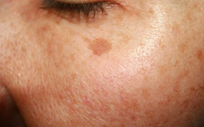 ZO Newsletter – What is Hyperpigmentation