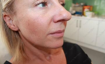 true-you-skin-clinics-Thining-Lips